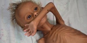 25357_yemen3_3_300x150.jpg