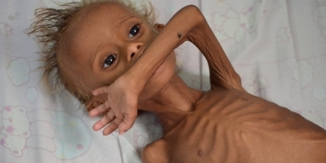 Σανίδα σωτηρίας για την Υεμένη